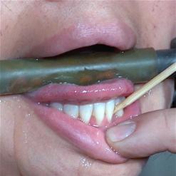 Milcah Halili with bit gag in extreme metal chain bondage